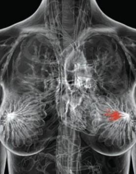 L'Ema ha autorizzato un farmaco contro il cancro mammario avanzato